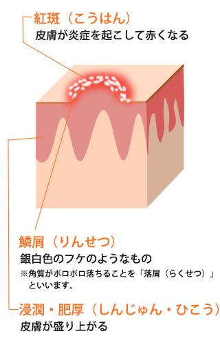 乾癬・掌蹠膿疱症(しょうせきのうほうしょう)図